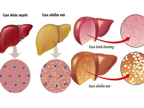 thực phẩm tốt cho người bệnh gan nhiễm mỡ