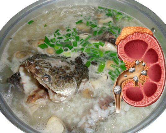 thực phẩm cho người bệnh sỏi thận 2