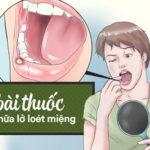 bài thuốc chữa lỡ loét miệng