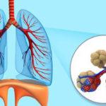 tim gan phổi