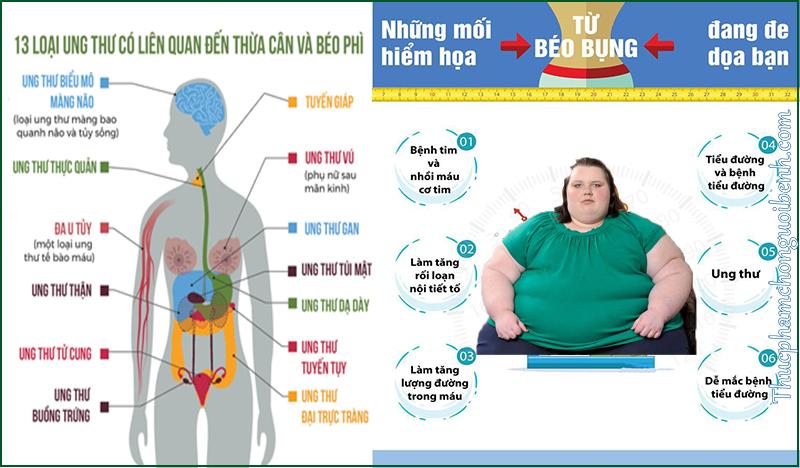 hậu quả cảu béo phì